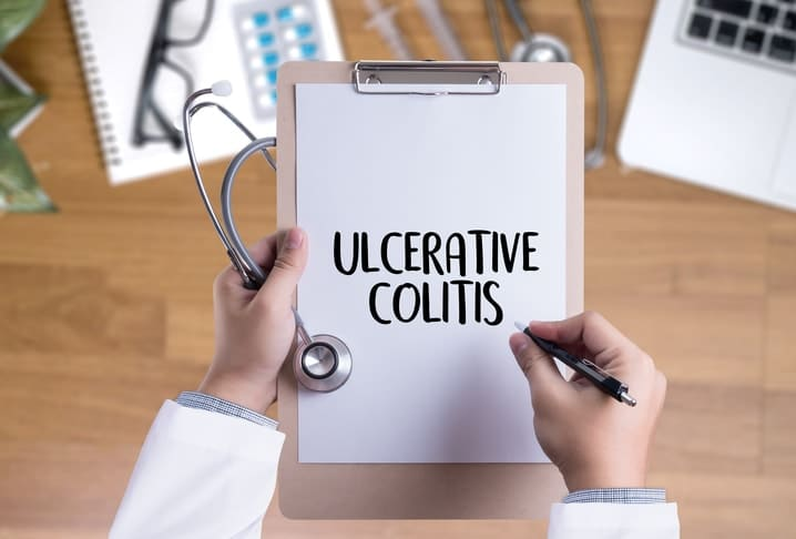 Doctor holds clipboard with the words ulcerative colitis